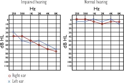 hallásveszteség